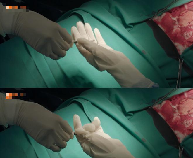 Hài hước cảnh dùng thịt bò để phẫu thuật trong Hậu duệ mặt trời Việt-8