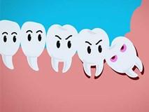 Sự tích răng khôn và vì sao chúng hành hạ con người đến vậy?
