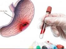 Các bước tầm soát ung thư dạ dày ai cũng cần biết