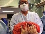 Chưa từng gặp ở Việt Nam: Người đàn ông mắc ung thư 48 năm nay vẫn sống khỏe mạnh-3