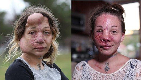 Người phụ nữ có gương mặt chực vỡ tung vì nguyên nhân lạ-3