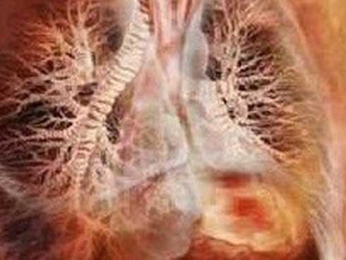 Mắc sai lầm khi ăn uống, cháu bé 5 tuổi bị sán làm tổn thương cả gan và phổi-2