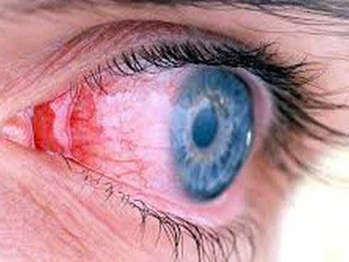 Những triệu chứng cảnh báo nguy cơ bệnh về mắt nguy hiểm-1
