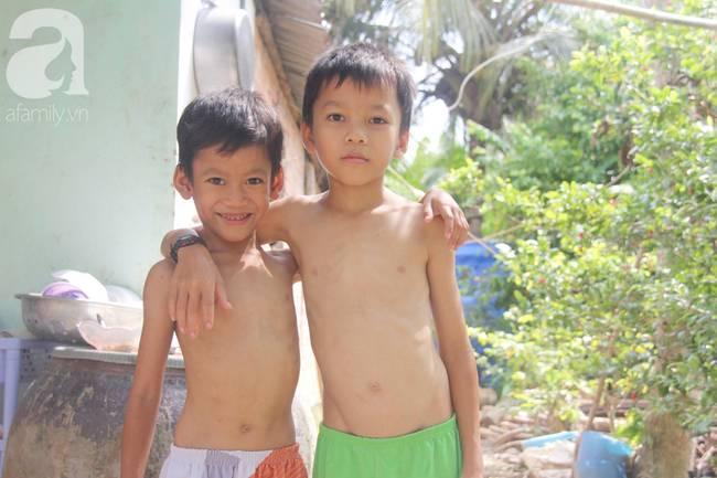 4 đứa trẻ mồ côi cha, ốm trơ xương vì đói ăn bên bà nội già yếu sau khi mẹ bỏ đi lấy chồng mới-10
