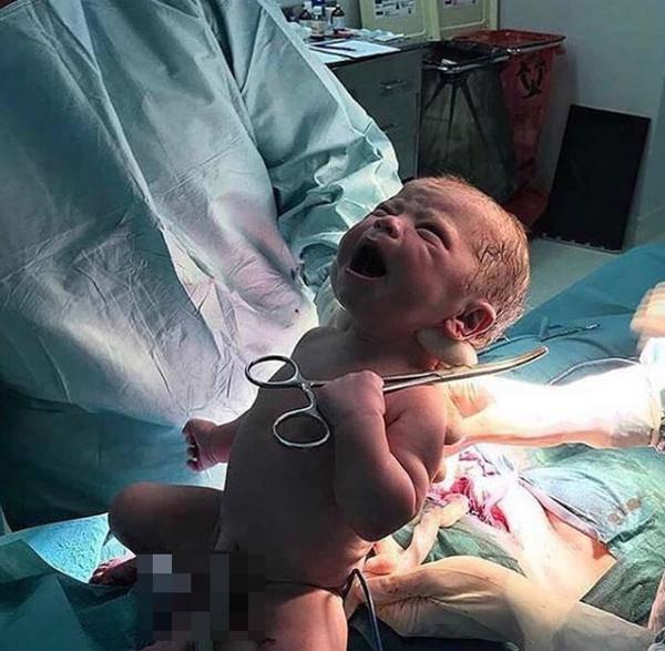 Đang khóc váng trời khi vừa chào đời, cặp song sinh vẫn làm một hành động kỳ diệu-2