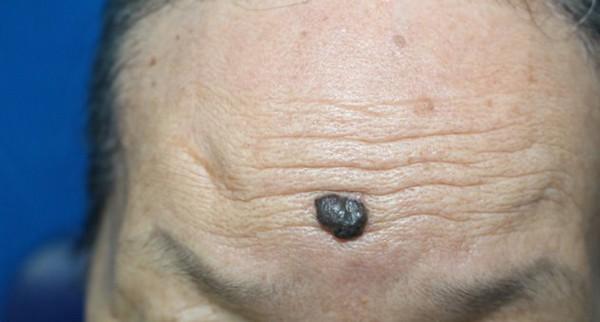 Ung thư từ nốt ruồi rất nguy hiểm, di căn nhanh: Những dấu hiệu của nốt ruồi cần cảnh giác-1