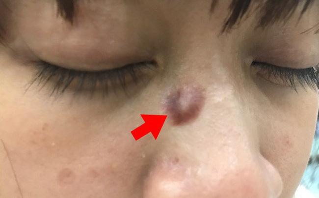 Ung thư từ nốt ruồi rất nguy hiểm, di căn nhanh: Những dấu hiệu của nốt ruồi cần cảnh giác-2