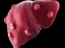 Cha mẹ lưu ý: Mũi tiêm ngay từ lúc sơ sinh này có thể giúp con bạn tránh khỏi ung thư gan