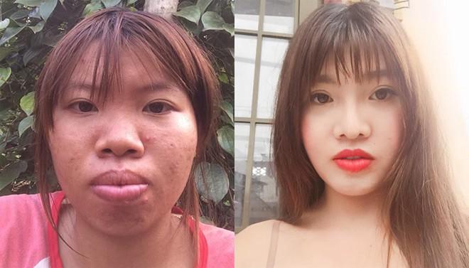"""Phượng Thị Nở"""" bất ngờ bị ngã trầy xước mặt mũi sau gần 2 năm thẩm mỹ khiến nhiều người lo lắng-1"""