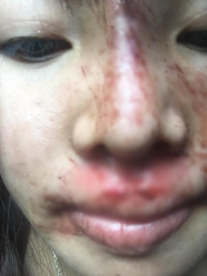 """Phượng Thị Nở"""" bất ngờ bị ngã trầy xước mặt mũi sau gần 2 năm thẩm mỹ khiến nhiều người lo lắng-5"""