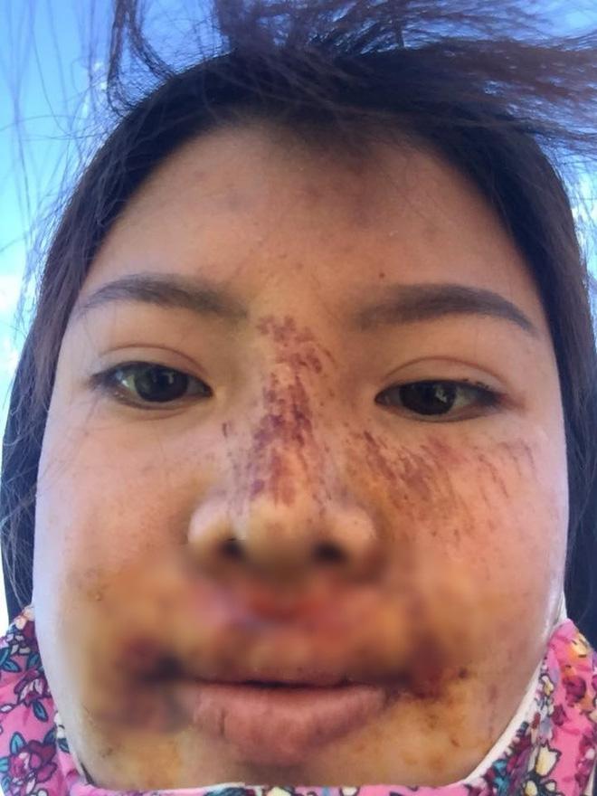 """Phượng Thị Nở"""" bất ngờ bị ngã trầy xước mặt mũi sau gần 2 năm thẩm mỹ khiến nhiều người lo lắng-6"""