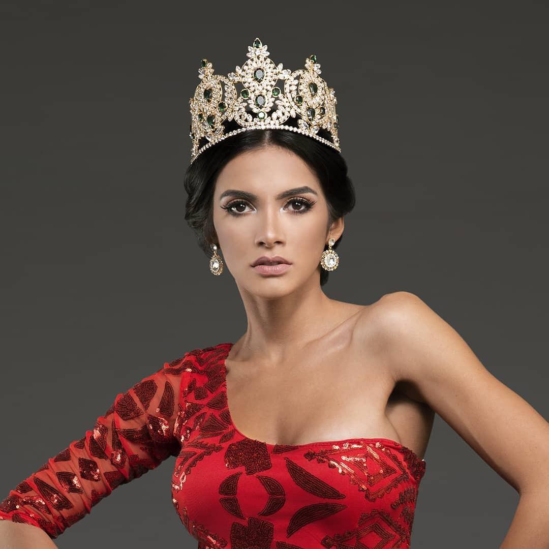 Tân Hoa hậu ngất xỉu: Đẹp như nữ thần Hy Lạp, nhưng bất ngờ hơn là body và profile không vừa của cô-6
