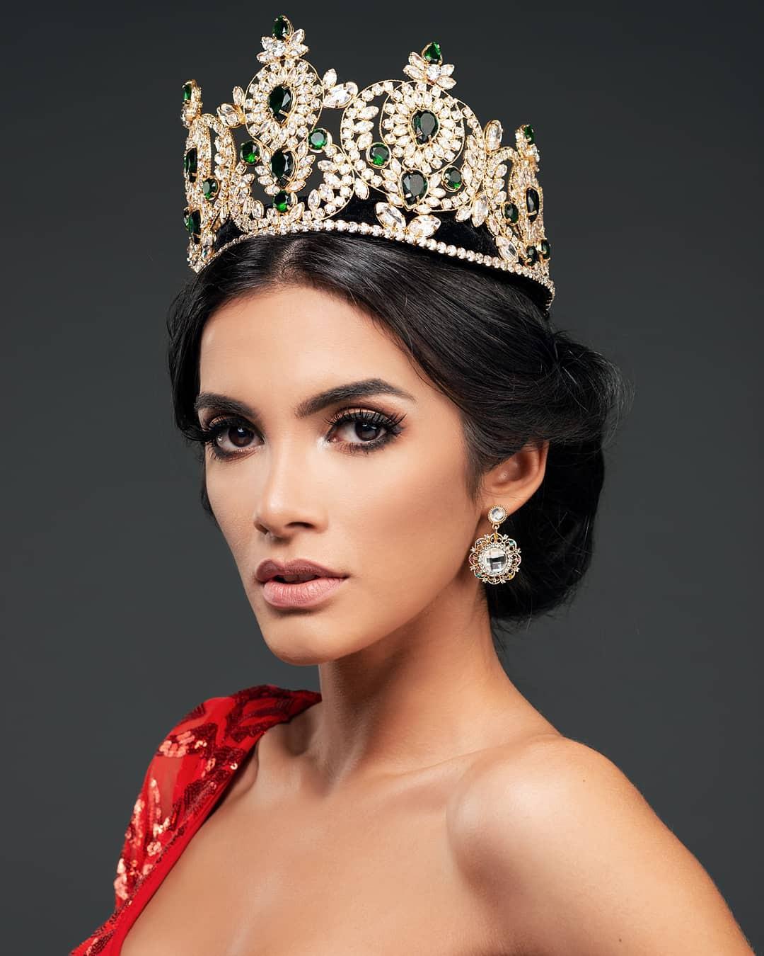 Tân Hoa hậu ngất xỉu: Đẹp như nữ thần Hy Lạp, nhưng bất ngờ hơn là body và profile không vừa của cô-1