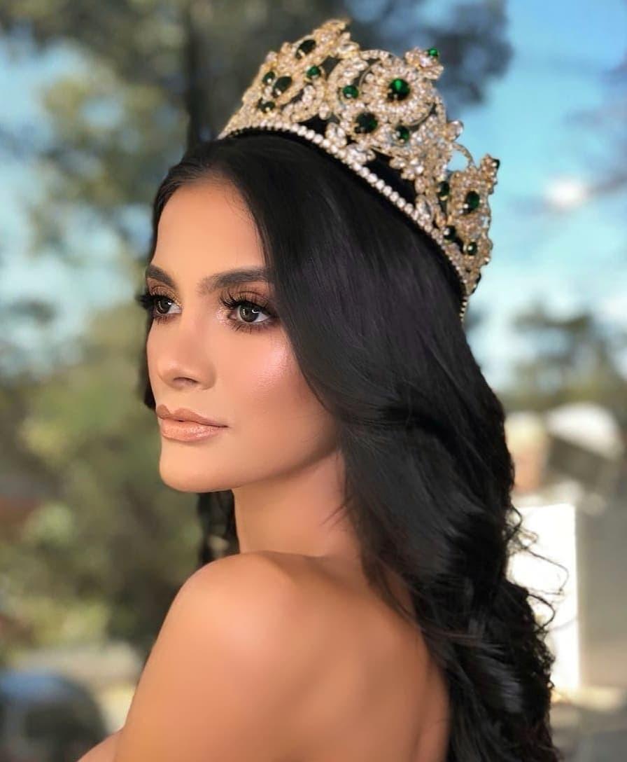 Tân Hoa hậu ngất xỉu: Đẹp như nữ thần Hy Lạp, nhưng bất ngờ hơn là body và profile không vừa của cô-5