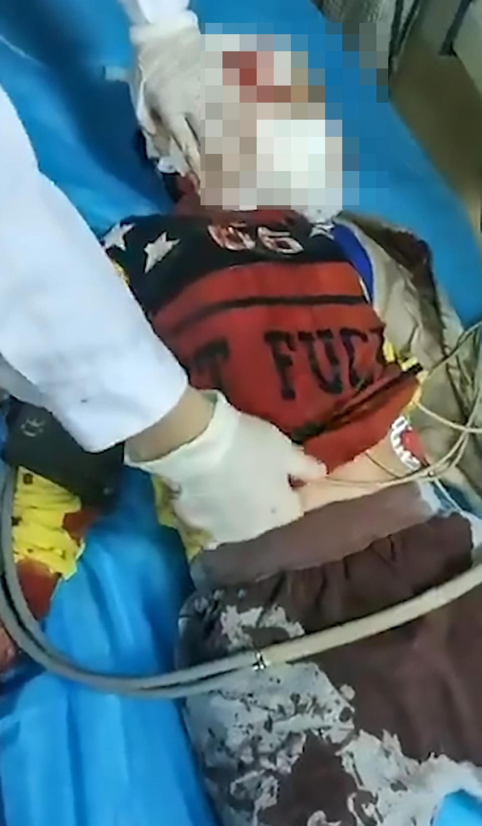 Trung Quốc: Người phụ nữ loạn trí cầm dao chặt thịt tấn công trường mẫu giáo, ít nhất 14 học sinh bị thương-3