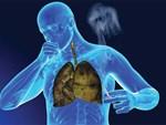 30 tuổi mắc ung thư phổi, nam thanh niên ôm mặt khóc hối hận chỉ vì thói quen 15 năm trước-3