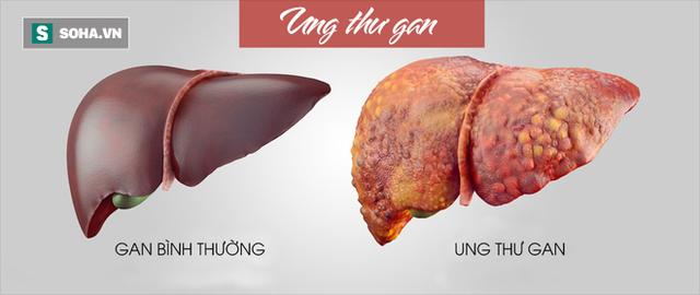 GS ung bướu BV Bạch Mai chỉ ra những bệnh ung thư có nhiều người mắc nhất ở Việt Nam-1
