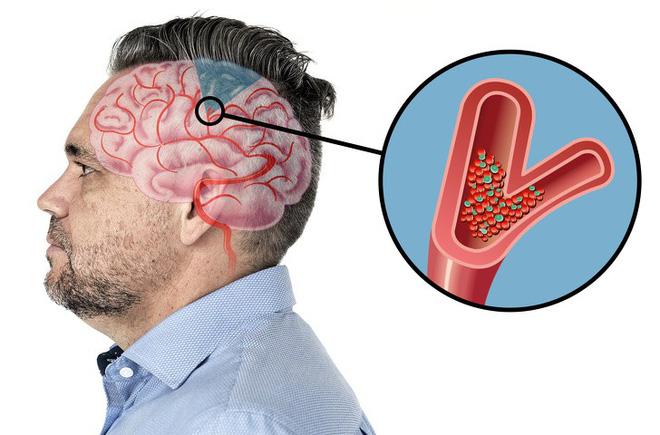 6 dấu hiệu cảnh báo một cơn đột quỵ sắp xảy ra: Hãy nắm rõ cách xử trí đột quỵ này-8