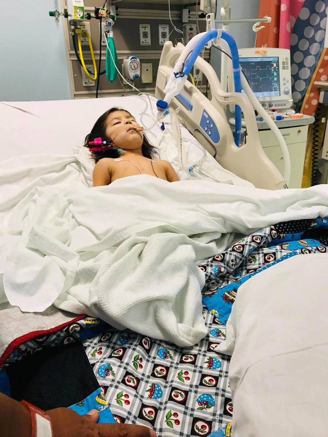 Bé 2 tuổi tưởng bị cảm thông thường, hóa ra lại mắc căn bệnh nguy hiểm làm liệt cả tay và vai-1
