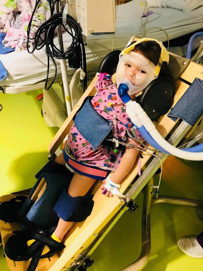 Bé 2 tuổi tưởng bị cảm thông thường, hóa ra lại mắc căn bệnh nguy hiểm làm liệt cả tay và vai-2