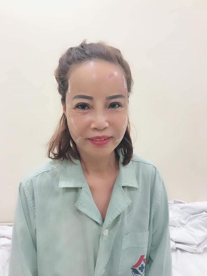Cô dâu 62 tuổi lộ ảnh chuẩn tuổi khác xa hình gây bão mạng xã hội sau thẩm mỹ-1
