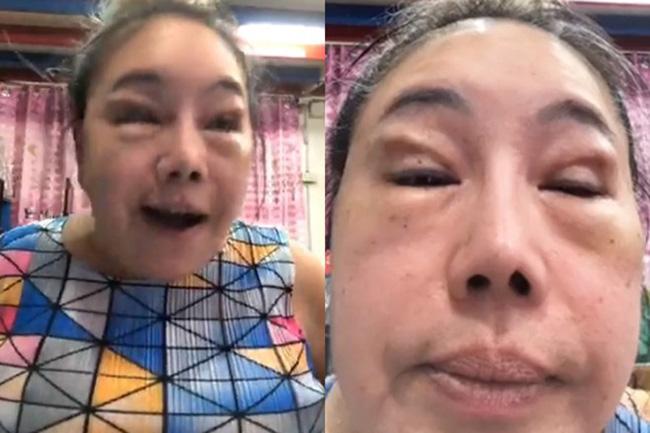 Nhan sắc hiện tại của nữ đại gia Thái Lan đổi chồng như thay áo sau cuộc phẫu thuật trở về tuổi 30-2