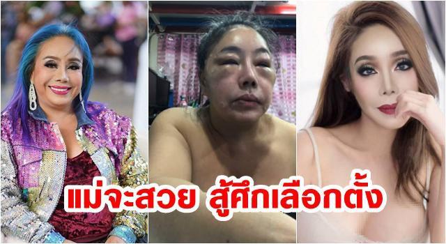 Nhan sắc hiện tại của nữ đại gia Thái Lan đổi chồng như thay áo sau cuộc phẫu thuật trở về tuổi 30-1