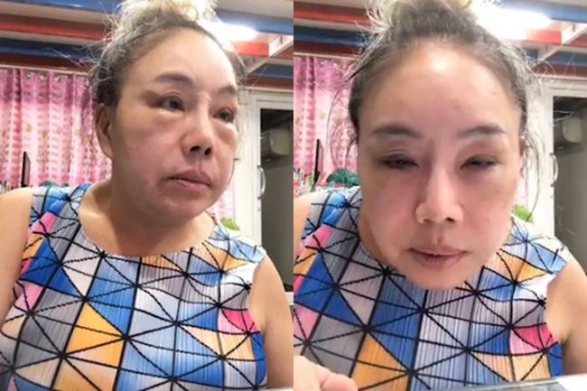 Nhan sắc hiện tại của nữ đại gia Thái Lan đổi chồng như thay áo sau cuộc phẫu thuật trở về tuổi 30-3