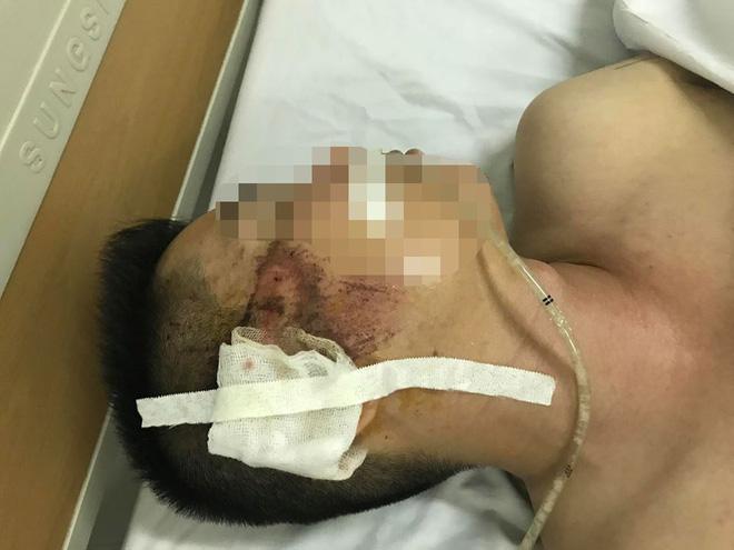 Mẹ của tài xế taxi bị người ngồi trong xe Mazda bắn: Nó cố tình giết con tôi-3