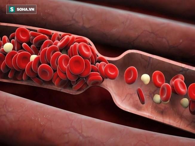 Đông y gọi hạt này là vua hút chất độc: Ăn đều có thể thải độc, sạch mạch máu, sống thọ-2