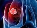Người đàn ông bị nhức vai, đi khám sốc vì ung thư phổi giai đoạn cuối-4