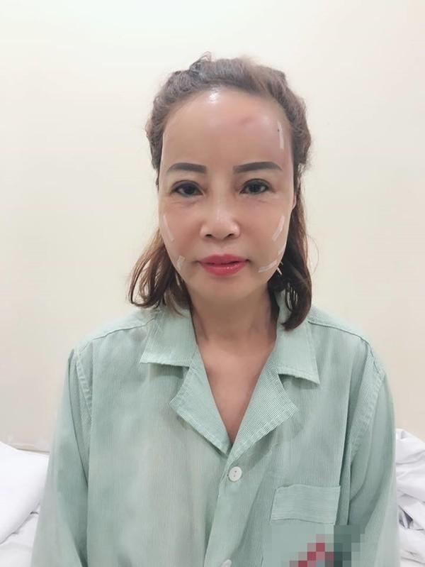 Ham livestream, cô dâu 62 tuổi lộ rõ vẻ già nua như chưa thẩm mỹ, dân mạng nghi ngờ làm màu để bán hàng online-1