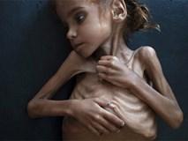 Bé gái trong bức ảnh gây chấn động thế giới về nạn đói đã qua đời, trở thành biểu tượng đau đớn của cuộc khủng hoảng tại Yemen