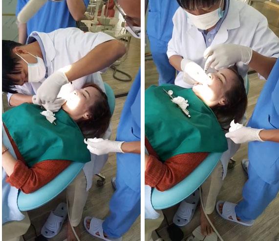 Sau khi căng da mặt, cô dâu 62 tuổi tiếp tục thể hiện sự chịu chơi khi chi hơn 200 triệu để làm răng-2