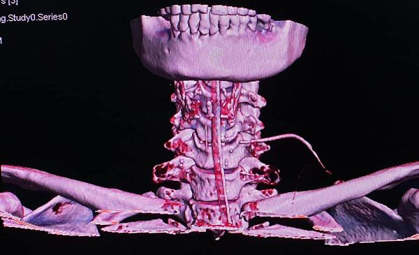 Nữ bệnh nhân bị xương cá đâm xuyên cổ, BS cảnh báo: Tuyệt đối không làm điều này khi ăn-2