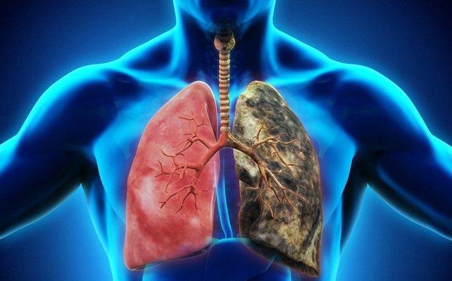 Người đàn ông bị nhức vai, đi khám sốc vì ung thư phổi giai đoạn cuối-2