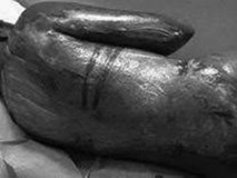 Bi kịch của nữ giúp việc châu Phi ở Trung Đông: Bị chủ đánh đập, bỏ mặc khi bỏng tới chết