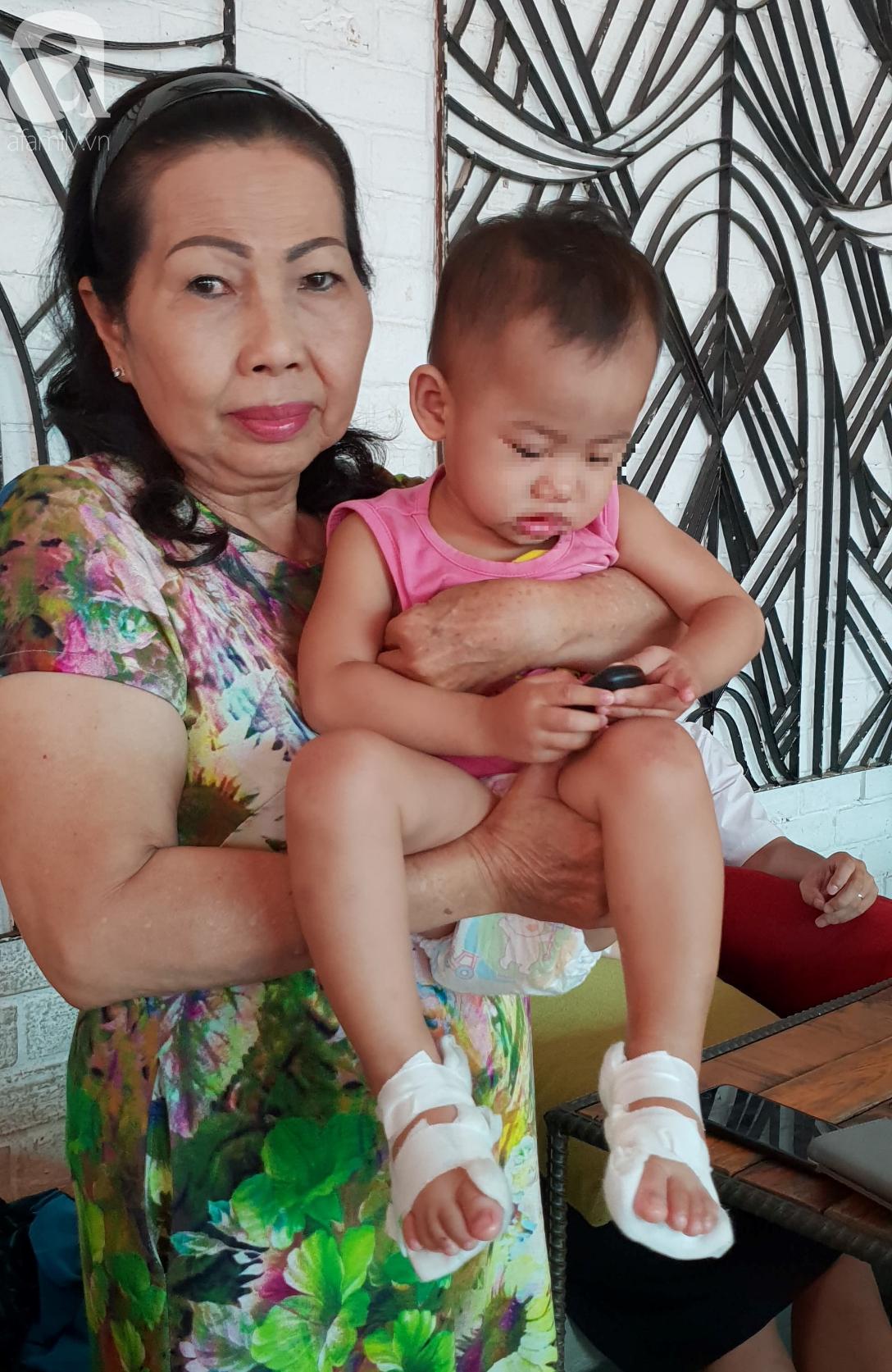 TP.HCM: Bé gái 18 tháng tuổi bị phỏng bất thường ở chân khi đi học ở trường mầm non, bố mẹ làm đơn cầu cứu-4