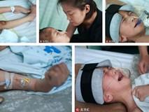 Nhận được điện thoại từ chồng cũ, người mẹ chạy đến bệnh viện và gục ngã khi biết con trai bị bạo hành đến thân tàn ma dại