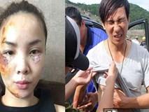 Sao Việt và những lần gặp tai nạn nghiêm trọng: Gãy xương, suy giảm thị lực nhưng vẫn chưa phải điều kinh khủng nhất