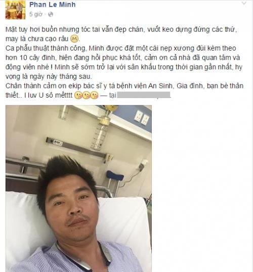 Sao Việt và những lần gặp tai nạn nghiêm trọng: Gãy xương, suy giảm thị lực nhưng vẫn chưa phải điều kinh khủng nhất-4
