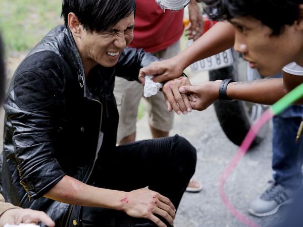 Sao Việt và những lần gặp tai nạn nghiêm trọng: Gãy xương, suy giảm thị lực nhưng vẫn chưa phải điều kinh khủng nhất-6