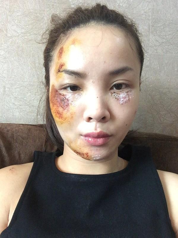 Sao Việt và những lần gặp tai nạn nghiêm trọng: Gãy xương, suy giảm thị lực nhưng vẫn chưa phải điều kinh khủng nhất-8