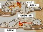 Người bị trào ngược dạ dày nên chú ý tới những điều này để không làm tình trạng bệnh thêm tồi tệ-6