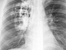 Tỷ lệ mắc ung thư phổi ở Việt Nam rất cao: