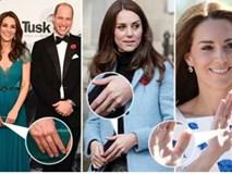 """Công nương Kate là nàng dâu """"hậu đậu nhất"""" hoàng gia bởi một loạt vết tích trên tay không giống ai của mình"""
