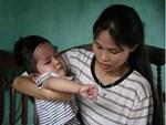 Bé gái 5 tuổi bị viêm màng não tự miễn sau cơn co giật, hơn 1 tháng không thể ngủ và liên tục la hét-12