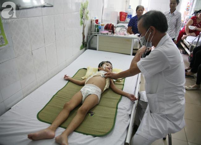 Bé gái 5 tuổi bị viêm màng não tự miễn sau cơn co giật, hơn 1 tháng không thể ngủ và liên tục la hét-8