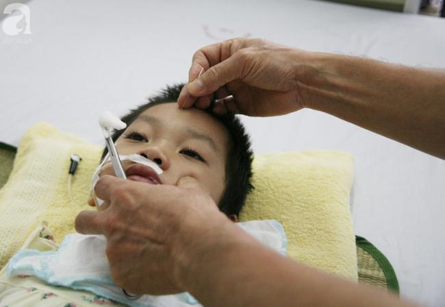 Bé gái 5 tuổi bị viêm màng não tự miễn sau cơn co giật, hơn 1 tháng không thể ngủ và liên tục la hét-10