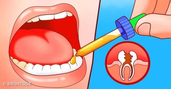11 cách giúp bạn dịu cơn đau do mọc răng khôn-7
